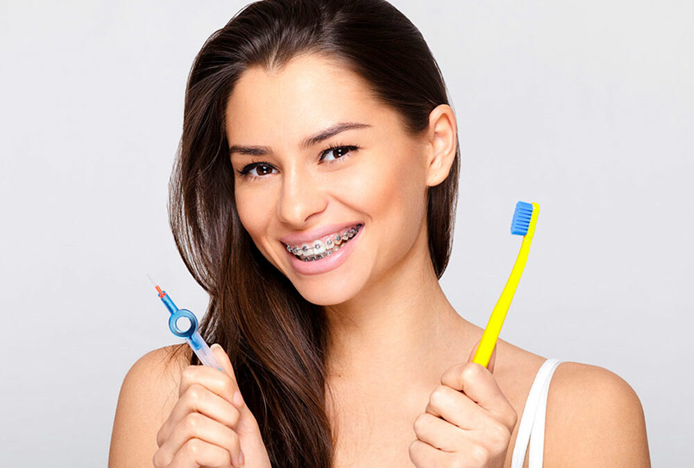 Guide to Brushing with Braces
