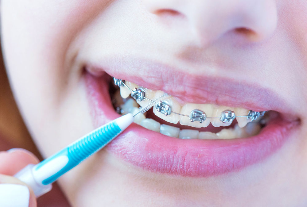 Keeping Your Braces Clean