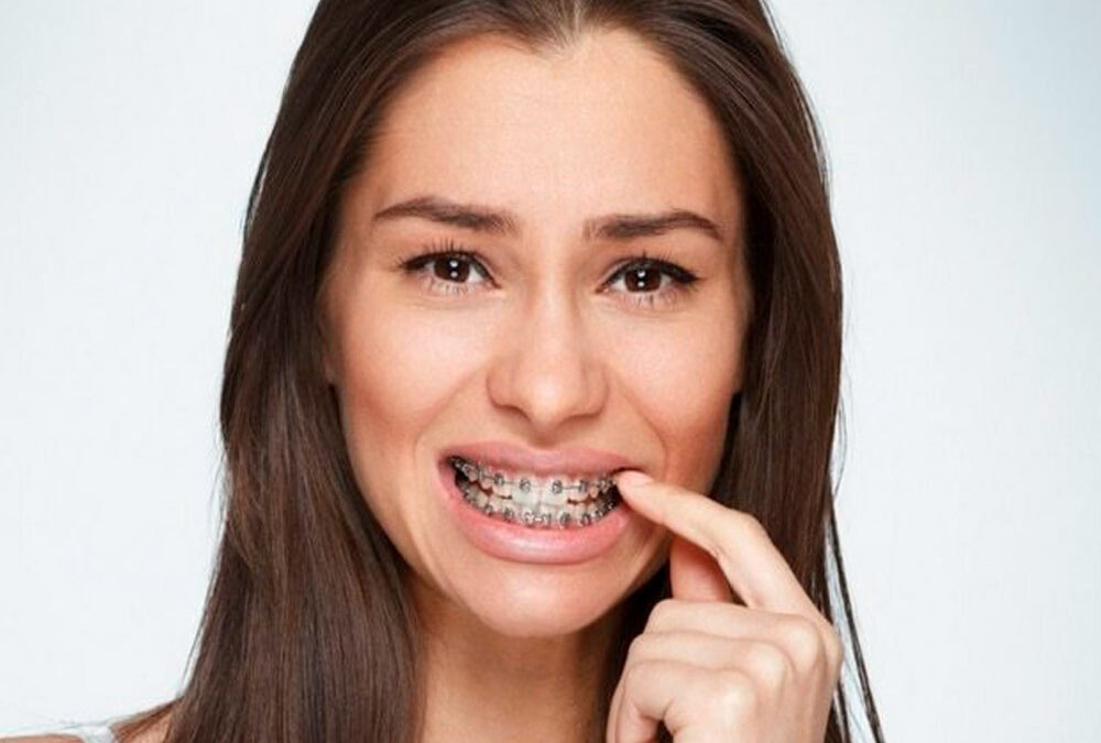 Image of woman in pain because of the braces on her teeth - Omar Orthodontics provides ways to ease braces pain