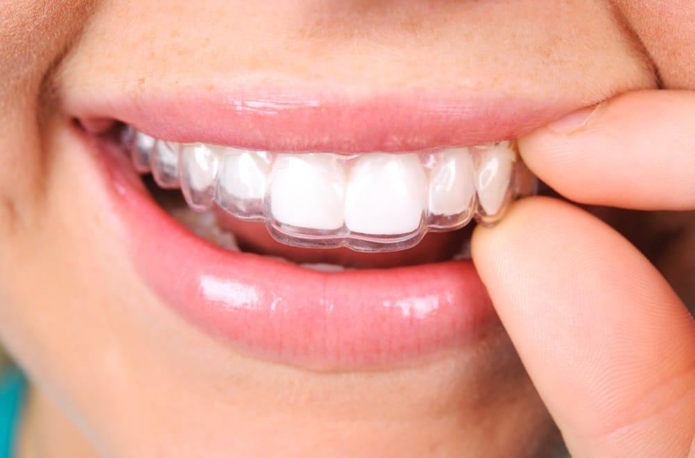 Your braces type